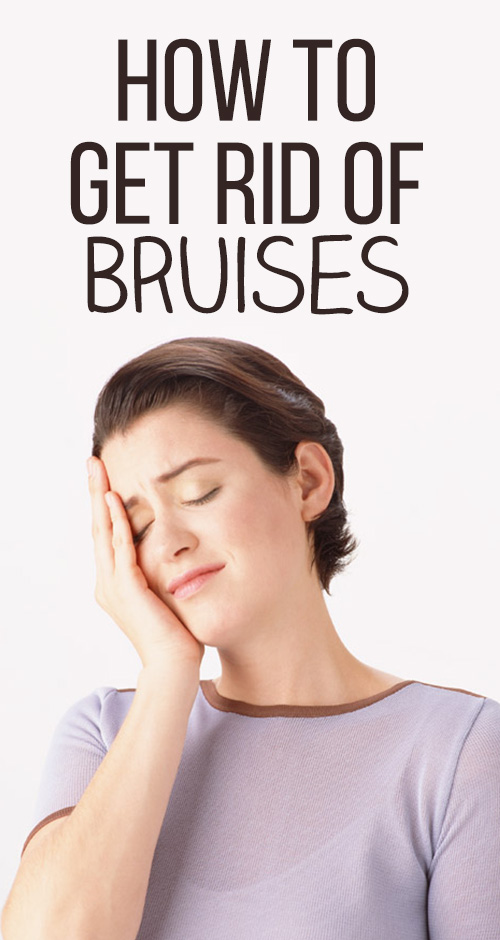 Top 4 Home Remedies For Bruises