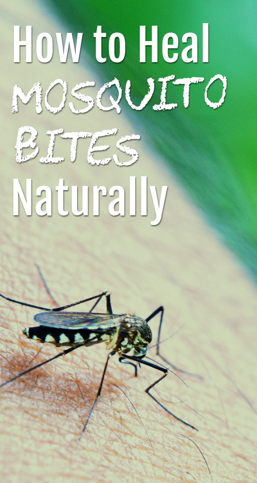 Top 5 Natural Ways to say Goodbye to Mosquito Bite